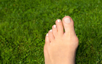 Don't Let Bunions Ruin Your Summer