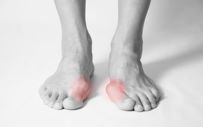 7 Simple Treatments for Bunions