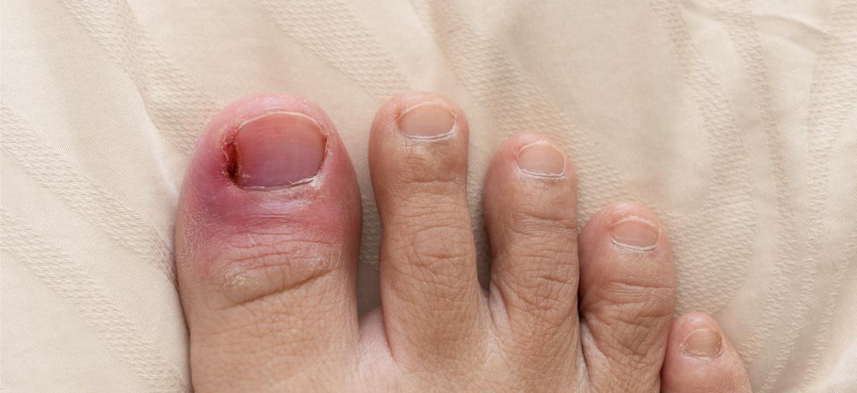 Ingrown toenail inflamed on big toe